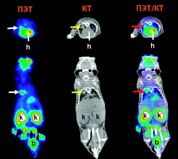 Снимки позитронно-эмиссионной томографии и компьютерной томографии